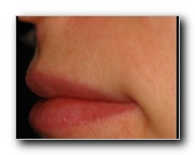 Upper Lip After Laser Hair Removal