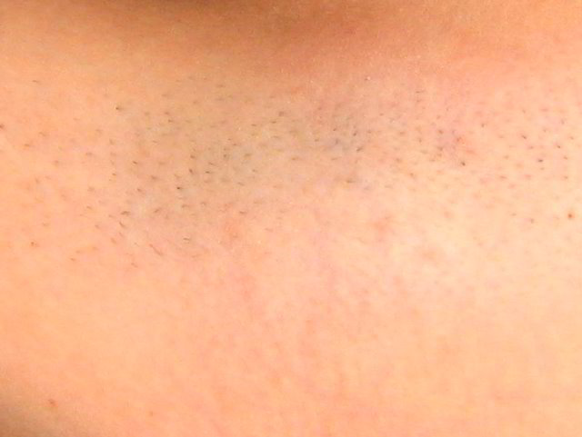 cost of brazilian laser hair removal at ideal image