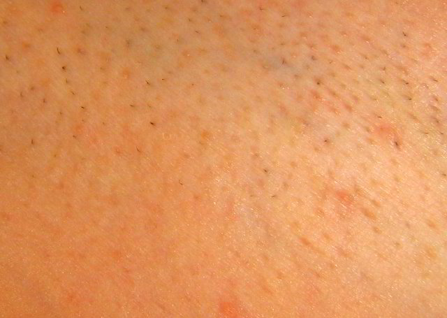 First Signs Of Shedding Hair After First Laser Hair Removal