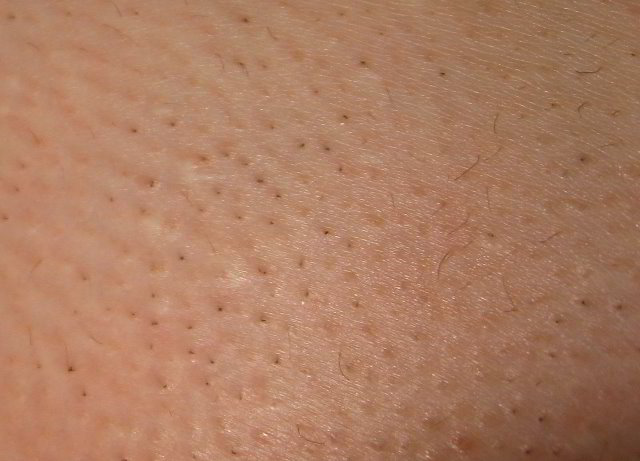 Hair Shedding And Pepperspots