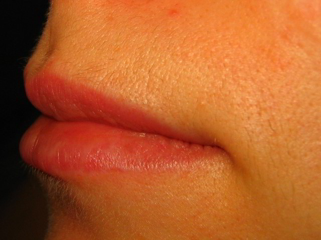 A Picture Of My Upper Lip Area Hair After Shedding Two